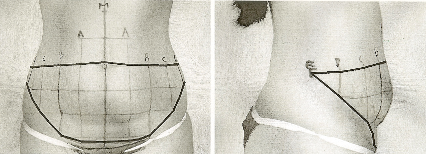 Panniculectomy And Abdominoplasty