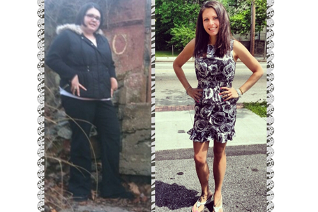 Leah V. (Gastric Bypass, 50Kg)