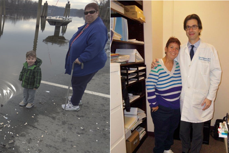 Beverly K. (Gastric Bypass, 54 Kg)