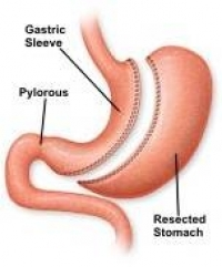 Laparoscopic gastric sleeve